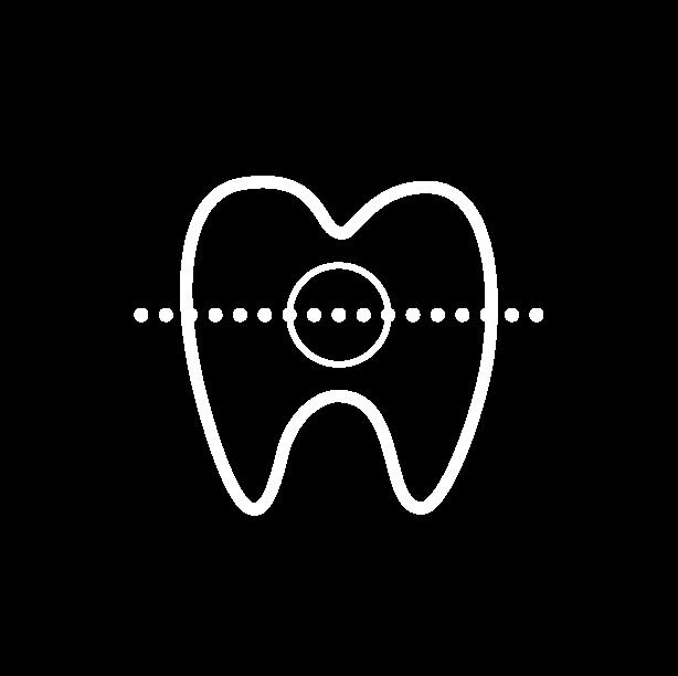 Orthodontie sans bague